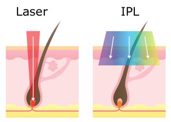 У чому різниця між роботою епілятора IPL і лазера?